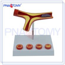PNT-0725 Modelo de arteriosclerose do bloqueio da artéria