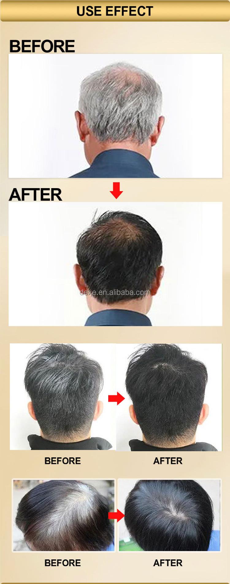 Crazy sale in pakistan and dubai Subaru Black hair shampoo(only 1 minute!!!)