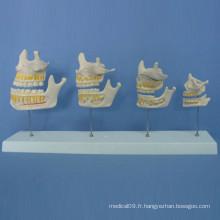 Processus de croissance des dents humaines Modèle d'anatomie pour l'enseignement (R080102)
