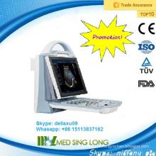 Promotion!!! Échographie Doppler couleur portable / échographie doppler portative (MSLCU23A)