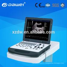 machine portative d'ultrason de Doppler et scanner échographique de doppler de couleur d'ordinateur portable