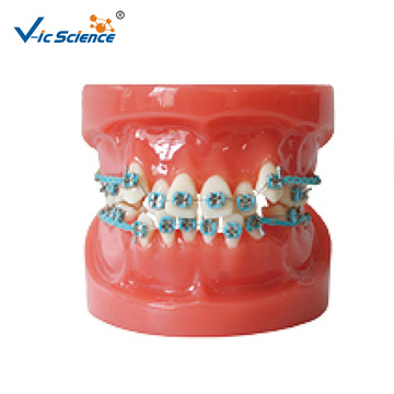 Ortho Dental Metallhalterung