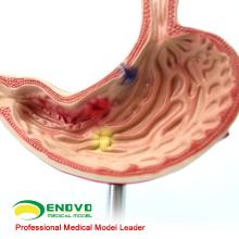 STOMACH01(12534) размером с половину человека больного медицинская Наука модель анатомического желудка желудка
