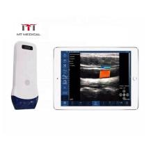 Newest Mini Wifi 128 Elements Color Doppler Linear Probe Pocket Wireless Ultrasound Scanner