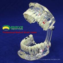 DENTAL08(12567) прозрачный зубной имплантат болезни зубы модели с восстановление