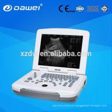 Computadora de diagnóstico ultrasónica del ordenador portátil convexo del elemento 96 de Full-Digital y ultrasonido DW-500 de la computadora portátil