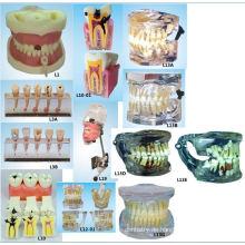 Mündliche Wissenschaft Ausbildung Ausrüstung Wurzel Kanal Abfüllung Modell Dental Teeth Modell