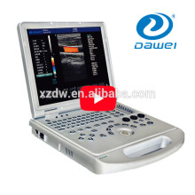 DW-C60 plus ultrasound portable doppler color&ecografos