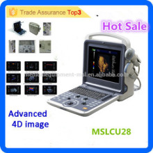 MSLCU28i New style & tech 3D 4D Color Doppler Ultrasound Scanner Portable Ultrasound Machine with Cheap Price