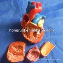 Modèle de coeur adulte modèle ISO nouveau modèle de anatomie cardiaque