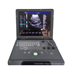 Laptop 15 inch 4D Color Doppler Ultrasound Machine for OB/GYN