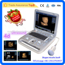 Promotion de Noël! CU18-I Nouveau Advanced 15in LED 4D PC Portable Ultrasound Scanner