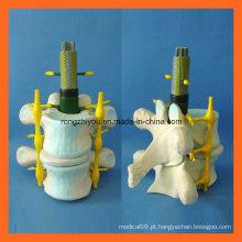 Modelo normal de ampliação da coluna vertebral humana para o ensino médico