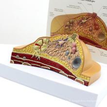 ANATOMY23 (12461) Modèle de Coupe de la Mammaire avec Pathologies Communes, 1 Partie, Modèles d'Anatomie> Modèle Femelle