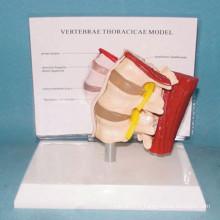 Modèle humain d'anatomie médicale de muscle vertébré lombaire humain (R040109)