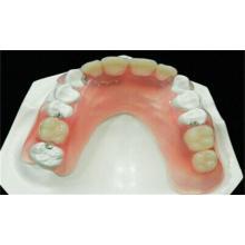 Dental Partial Denture