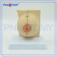 PNT-0747 grandeur nature modèle anatomique du sein féminin
