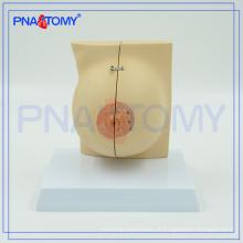 PNT-0747 modelo anatômico da mama em tamanho natural