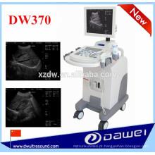 Ultrassom para gravidez e ultrassonografia carrinho de máquinas DW370