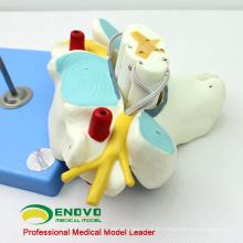 VERTEBRA09 (12393) Vertèbres cervicales de science médicale avec la moelle épinière (modèle médical, modèle anatomique)
