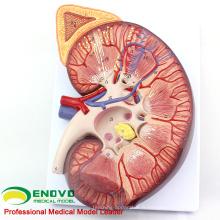 KIDNEY02 (12431) Rognon en plastique surdimensionné avec support 3 fois Agrandir Anatomie médicale
