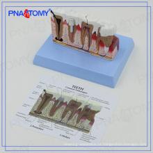 PNT-0528ad Osteoporose educacional Modelo de dentes dentais doentes