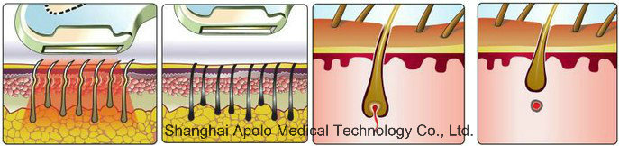 Beauty Salon Equipment Distributors Wanted IPL Elite IPL RF Laser Hair Removal, Shr