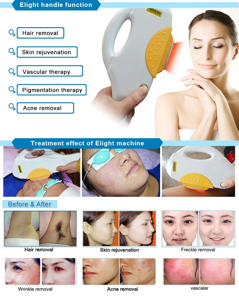 Best Portable Anti Aging Equipment Elight for Hair Removal Device IPL+RF Cleaning