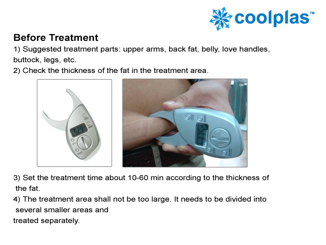 Cryolipolysis Slimming for Weight Loss Fat Freezing Reduction