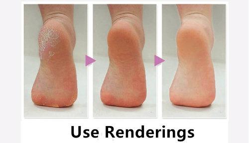 Perfect Electronic Pedicure Foot File Callus Remover