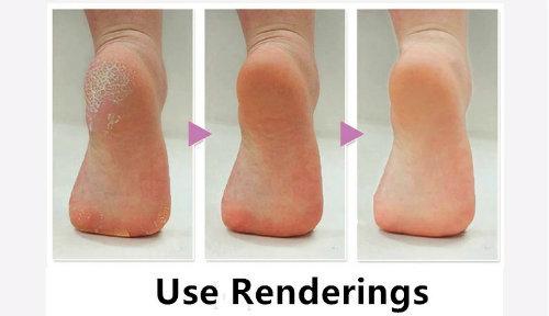Electronic Pedicure Foot File Callus Remover