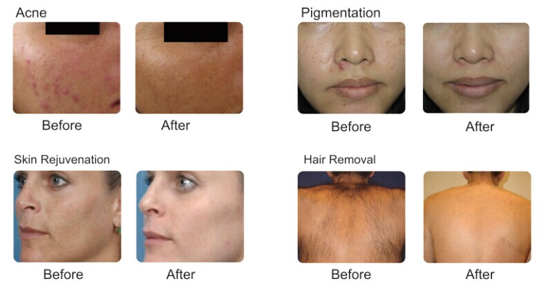 IPL Photofacial Pigment Removal Portable IPL Laser Hair Removal Machine