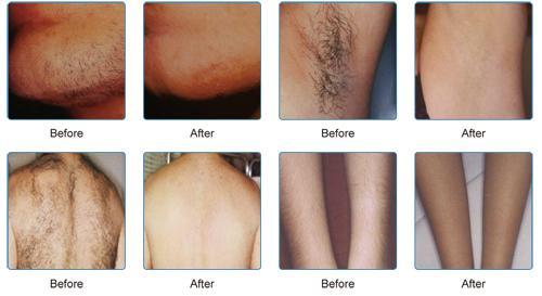 808nm Diode Laser Razorlaze Permanent Hair Removal Machine