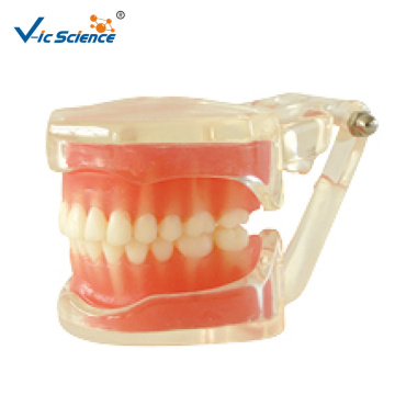 Removable Standard Model soft gum