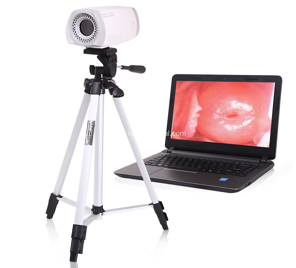 Digital Video Colposcope (KN-2200) for sales from China