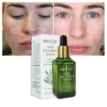 17ml Facial Anti Acne Serum Face Skin Whitening Repairing Essence Scar Blemish Pimple Removal Essence Women Skin Care TSLM1
