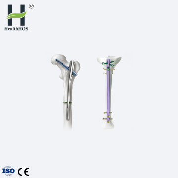 Orthopaedic femur interlocking intramedullary nail PFNA nail