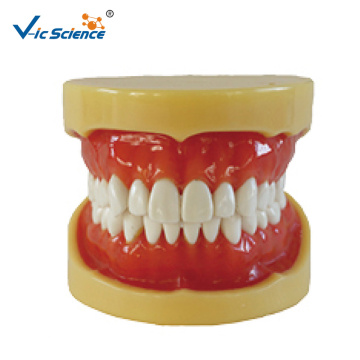 Removable Standard Model  hard gum
