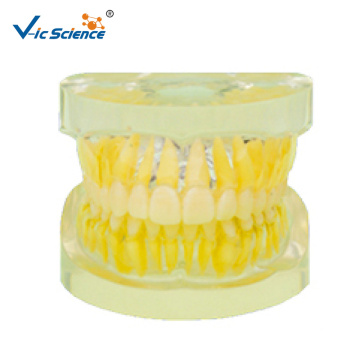 Dental Removable Standard Model
