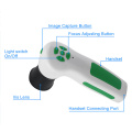 12MP USB Iriscope Iridology iris eye health analyzer