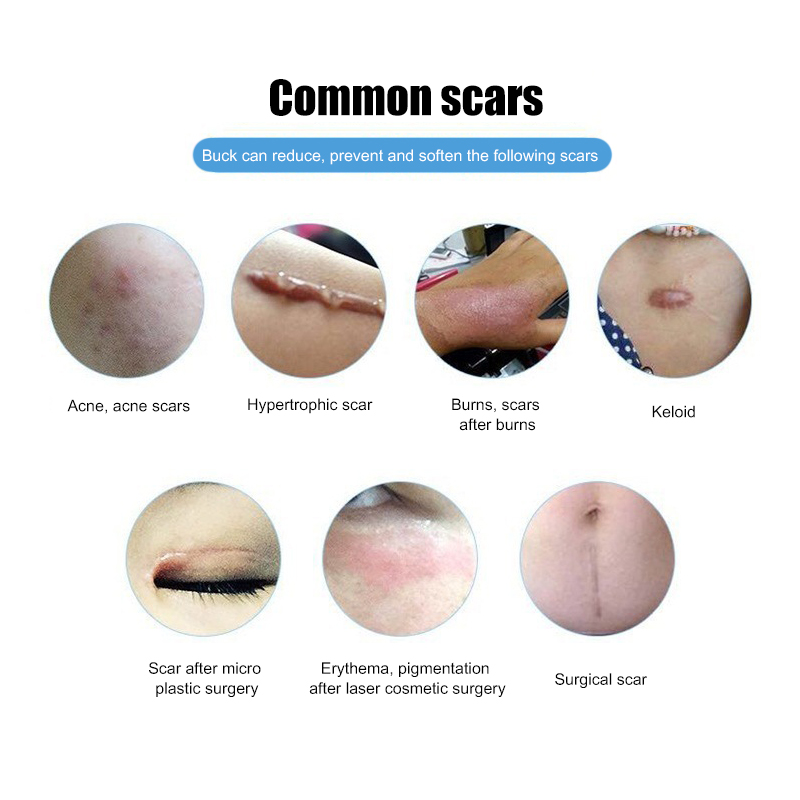 Scar Removal Cream Face Cream Acne Stretch Marks Removal Cream Smooth Skin Natural Renewal Healing Skin Repair Product