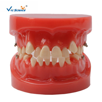 Orthodontic Dental  Model