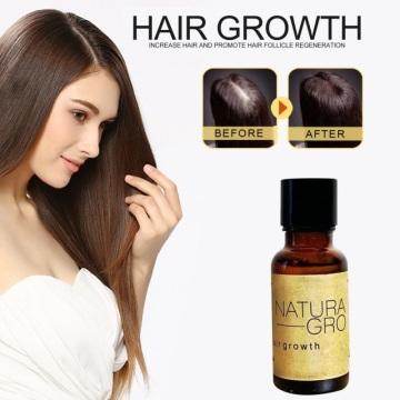 1PCS Hair Growth Liquid Ginger Germinal Serum Liquid Treatement Growth Hair Anti Hair Loss Serum Hair Repair Hair Care TSLM1