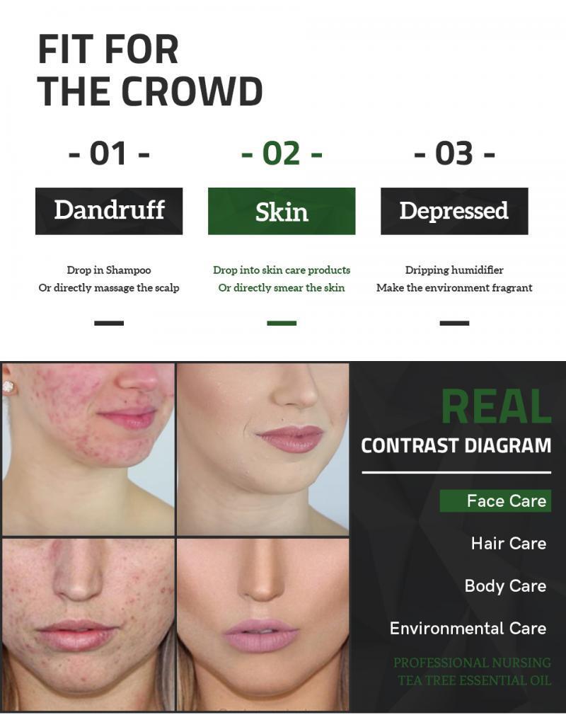 1Pc 100% Natural Tea Tree Essential Oil Anti Fungal Control Fade Acne Shrink Pores Treatment Essential Oil TSLM1