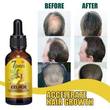 7-day Ginger Fast Hair Growth Serum Essential Oil Anti Preventing Hair Lose Liquid Damaged Hair Repair Growing Dropship TSLM1