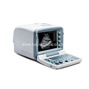 Full Digital B Mode Ultrasonic Diagnostic Instruments