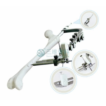 Femur Magnetic Guided Nail Intramedullary Nail