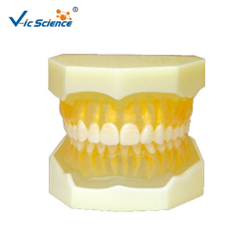 Removable Polyester Model (soft gum)