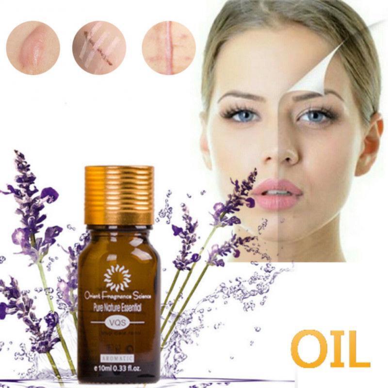 Ultra Brightening Spotless Oil Skin Care Dark Spots Remove Ance Burn Strentch Marks Scar Removal Brightening Skin Essence Oil