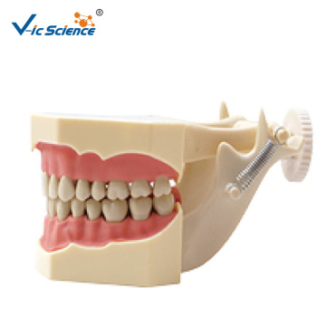 Type Study Dental Model